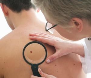 cancer-de-pele-nao-melanoma