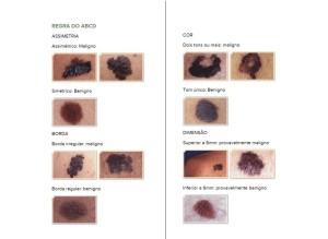 regra-abcd-cancer-de-pele-melanoma
