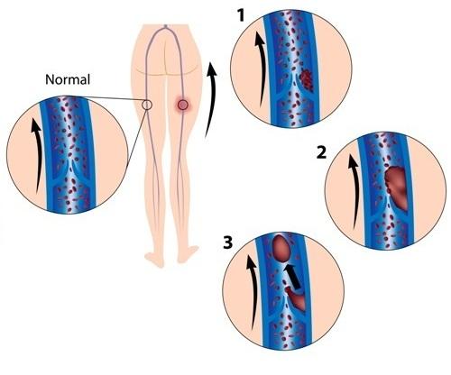 trombose.jpg