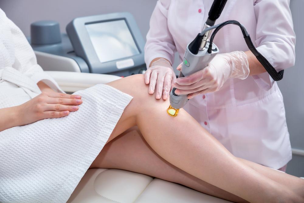 depilacao-a-laser-cancer